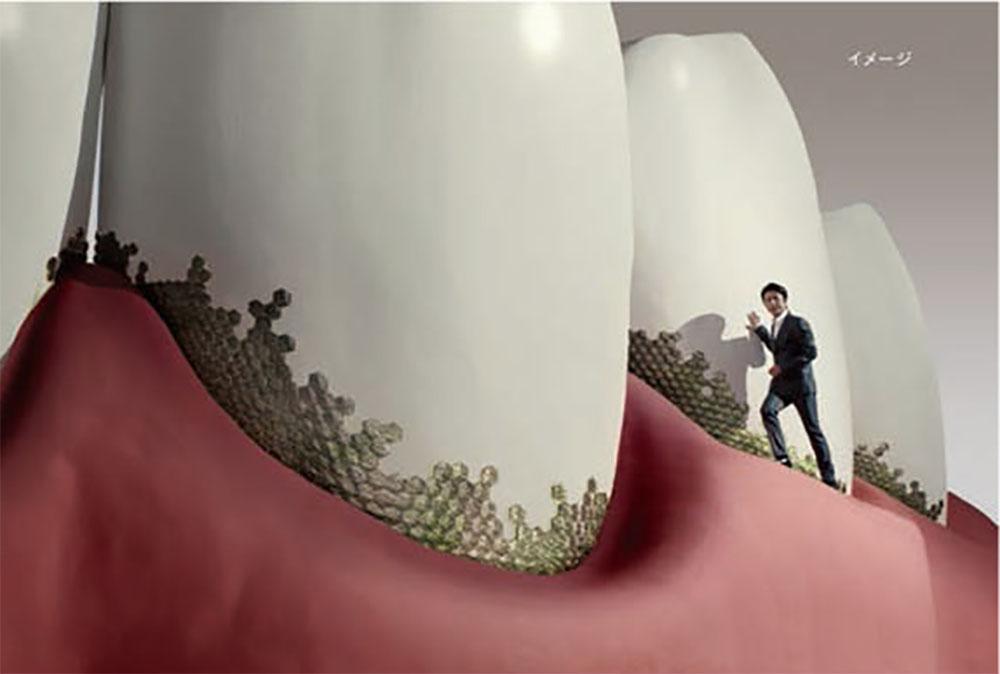 """巨大な歯のセットで""""違和感""""を~カムテクト「及川さん登場」篇の裏側"""